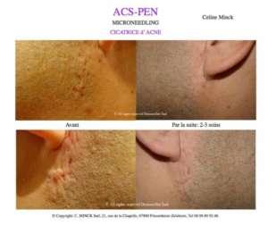 Microneedling - Cicatrices d'acné (Avant / Après)