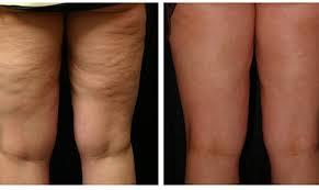 Cellulite (avant / après)