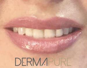 Dermopigmentation - Bouche bisous