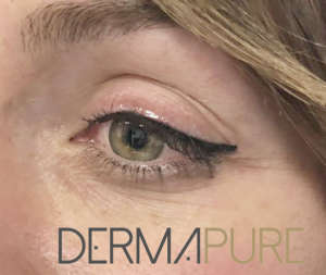 Dermopigmentation - Eyeliner supérieur