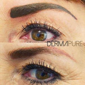 Dermopigmentation - Correction sourcils oranges