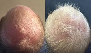 Medical JETOP - Cheveux d'homme (avant / après)