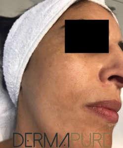 Peeling du visage (avant)