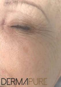 Peeling des yeux (après)