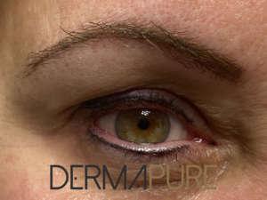 Dermopigmentation - Ras des cils - Sourcils naturels