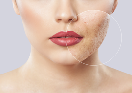 Acné et cicatrices d'acné